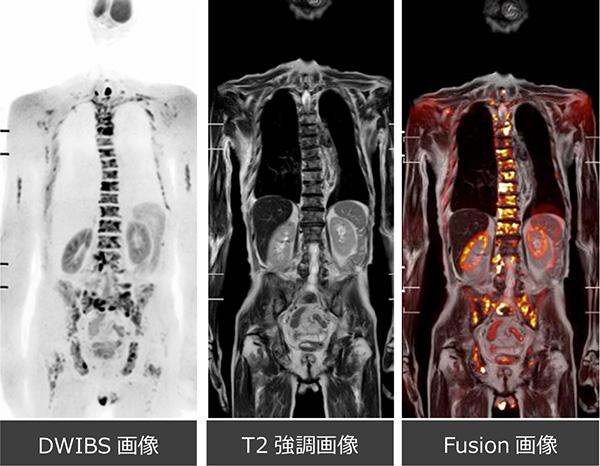 ん 転移 骨 が 余命 前立腺
