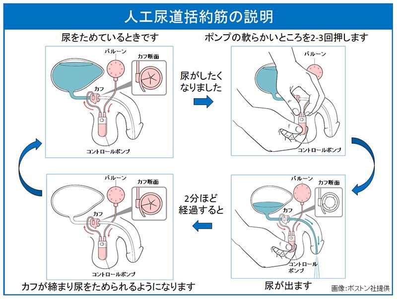 前立腺手術後の尿失禁治療:人工尿道括約筋 | 東京医科歯科大学大学院 ...